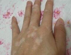 手部白癜风怎么治疗?