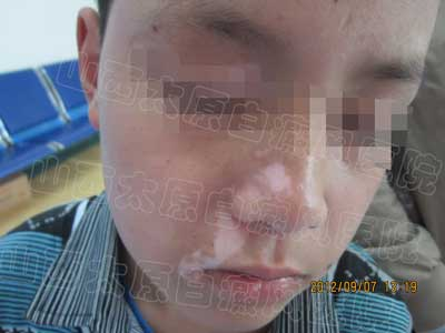 13岁孩子脸上长白斑是怎么回事?